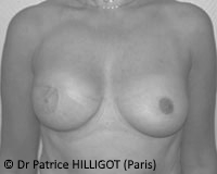 Dr Patrice HILLIGOT BREAST RECONSTRUCTION after surgery def