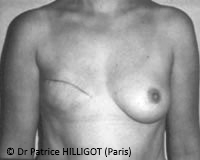 Dr Patrice HILLIGOT BREAST RECONSTRUCTION before surgery def